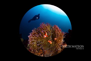Diver with anemone by Beth Watson