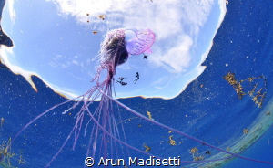 What happened next? Physalia and tentacles by Arun Madisetti