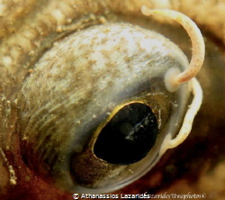 Eye of small flounder infected by parasites by Athanassios Lazarides