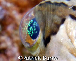 Puffer Eye with green stuff !  E900 with twin Inon Strobes by Patrick Burke