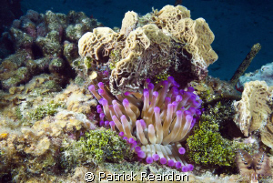 Anemone, Cracked Conch shore dive, Grand Cayman. by Patrick Reardon