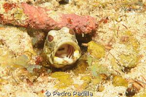 Checking my tonsils by Pedro Padilla