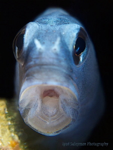 Say AHHH! :-0